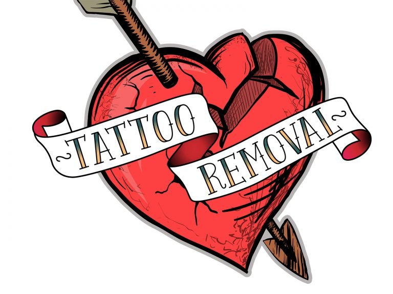 Why Rejuvi Tattoo Removal is The Most Effective and Much Less Expensive?